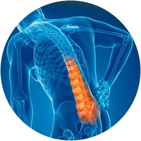 Backpain Treatment