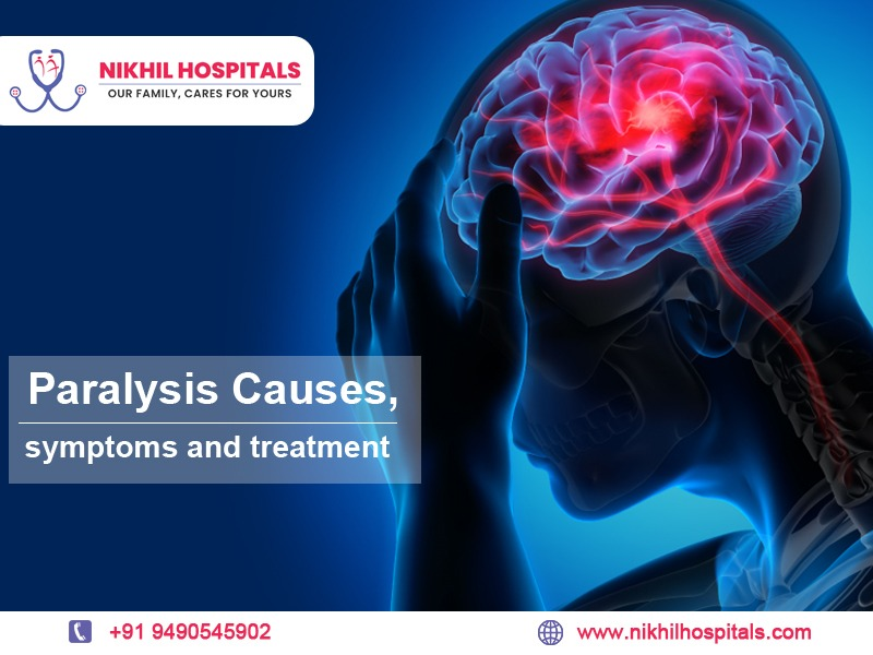 paralysis treatment in hyderabad