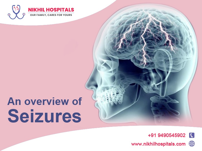 seizures treatment in hyderabad